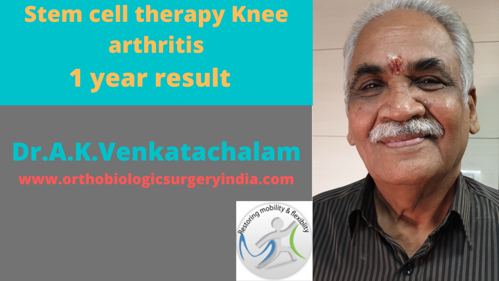 Cellular therapy knee arthritis
